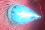 uv-light-catheter-400x265
